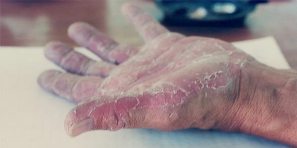 Wits scientists have discovered the genetic mutation responsible for the rare skin disease, keratolytic winter erythema (Oudtshoorn skin) which afflicts Afrikaners